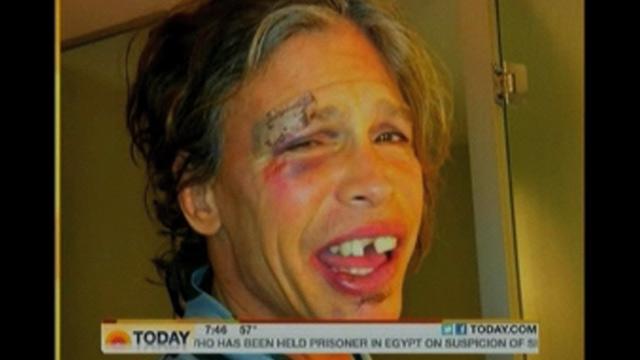 Steven Tyler após tombo