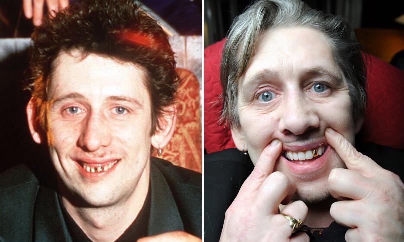 Shane MacGowan (The Pogues) ganha documentário sobre cirurgia dental