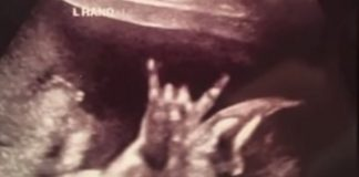 Bebê faz o devil horn e aparece em ultrassom