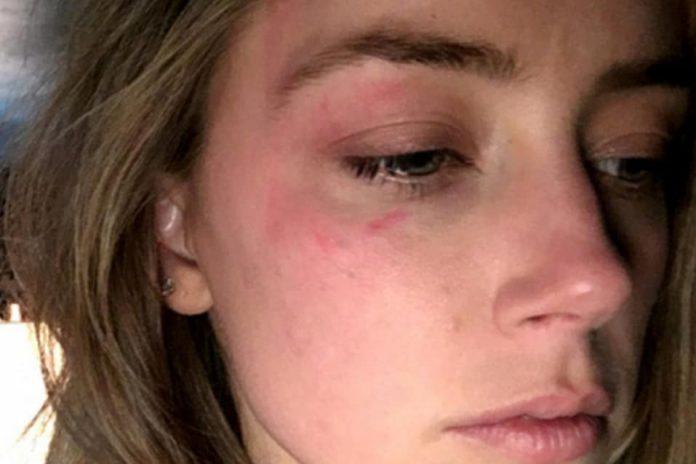 Amber Heard com marcas de agressão