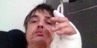 Pete Doherty Ouriço