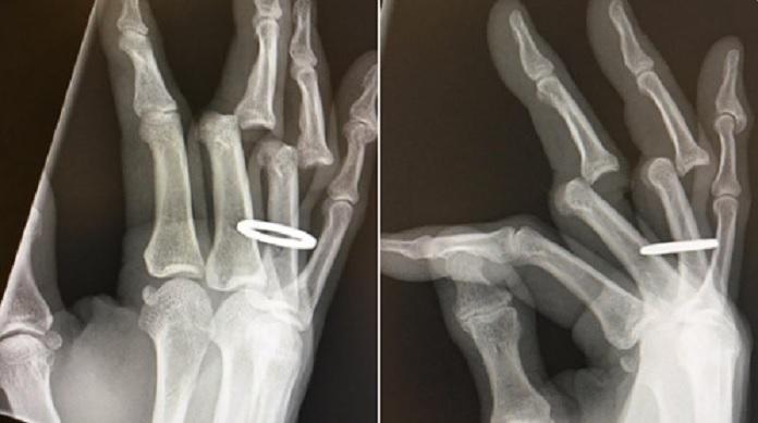 Tony Hawk Radiografia