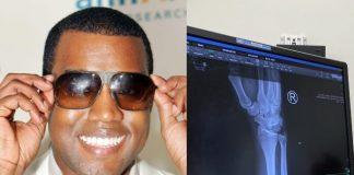 Raio X de Kanye West