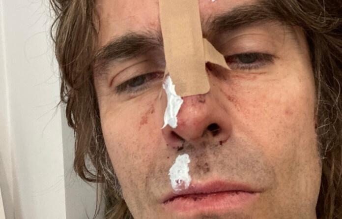 Liam Gallagher com o rosto machucado